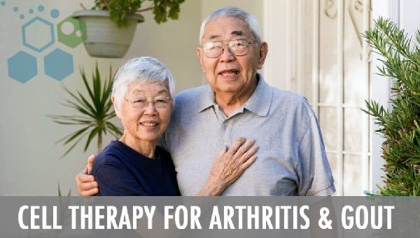 Cell Therapy for Arthritis